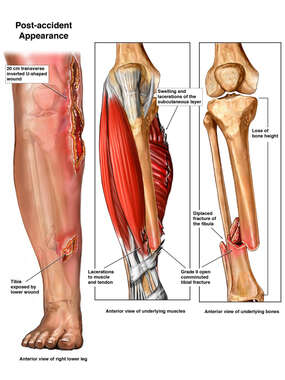 Open Fracture of the Right Lower Leg