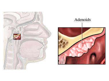 The Anatomy of the Adenoids