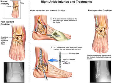 Right Ankle Injuries and Treatments