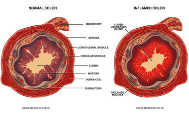 Cross-sectional Anatomy of the Colon