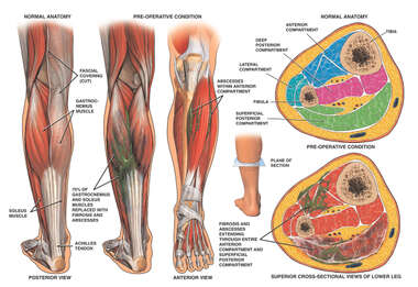 Abscesses and Fibrosis of the Gastrocnemius Muscle
