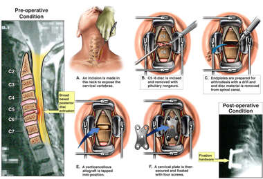 Cervical Disc Injuries with Surgical Discectomy and Fusion