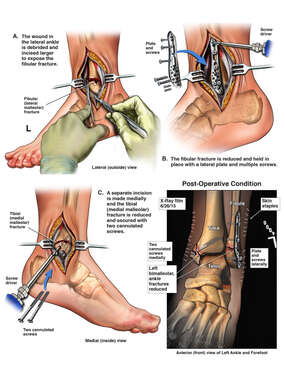 Open Reduction and Internal Fixation of Left Bimalleolar Ankle Fracture
