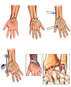 Left Wrist and Right Hand Injuries with External Fixation of the Left Wrist