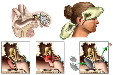 Traumatic Injury to the Right Ear with Reconstructive Surgery