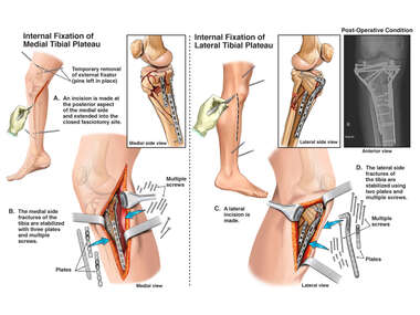 Surgical Procedures on the Right Tibial Plateau