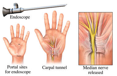Endoscopic Release of Carpal Tunnel Syndrome