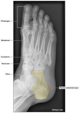 Condition of the Right Foot