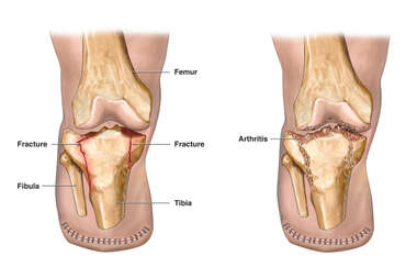 Fracture with Amputation Stump and Subsequent Arthritis of the Knee