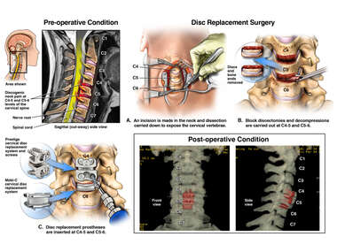 Cervical Spine Injuries with Disc Replacements