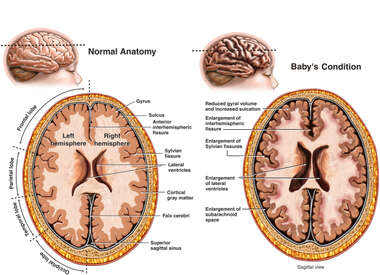 Central and Cortical Atrophy of the Brain