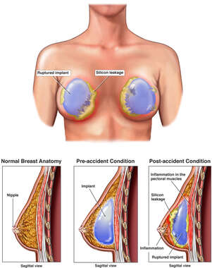 Bilateral Ruptured Breast Implants