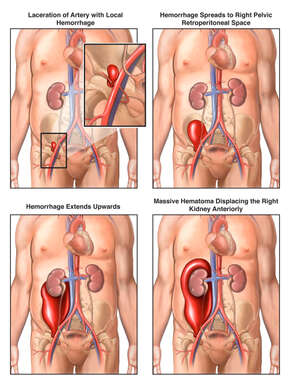 Progression of Retroperitoneal Hemorrhage