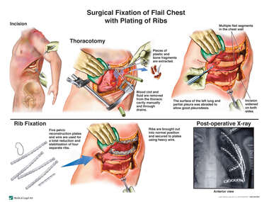 Surgical Fixation of Flail Chest with Plating of Ribs