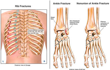Posterior Left Rib Fractures with Injuries and Nonunion of the Left Ankle Fibula