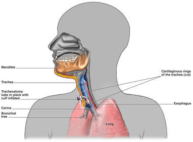 Tracheostomy Tube in Place