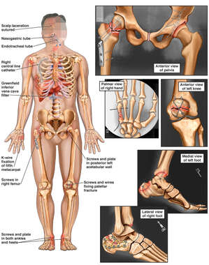 Male Skeletal Figure with Post-operative Conditions of the Pelvis, Hand, Knee and Ankles Bilaterally