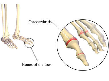 Osteoarthritis of the Foot
