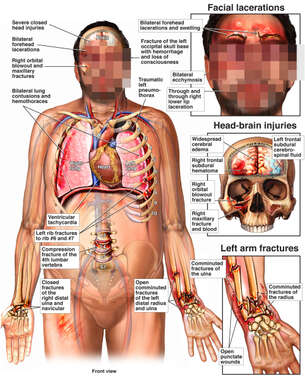 Male Figure with Multiple Post-Accident Injuries to the Face, Head, Brain, Thorax, Spine and Left Wrist