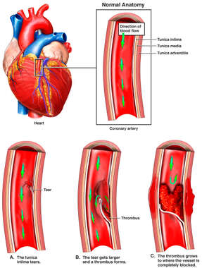 Progression of Coronary Artery Dissection