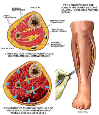 Compartment Syndrome with Fasciotomy Procedure