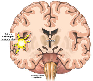 Seizure orginating in Temporal Lobe