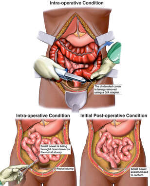 Surgical Colectomy and Subsequent Infection