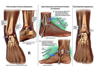 Trimalleolar Ankle Fracture with Surgical Fixation
