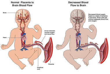 Fetal Brain Injury Due to Decreased Blood Flow (Ischemia)
