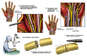 Microsurgical Repair of Hand Laceration and Carpal Tunnel Syndrome