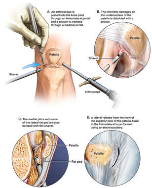 Patellar Chondroplasty and Lateral Release