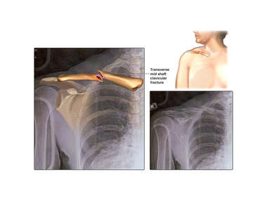 Right Clavicular Fracture