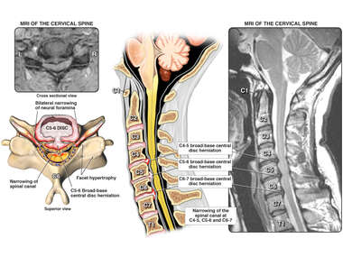 Cervical Spine Injuries with Multi-Level Fusion Surgery