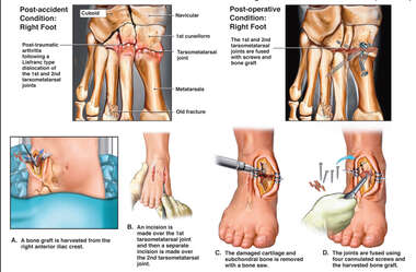 exh52827bPost-traumatic Foot Arthritis and Dislocation with Surgical Fixation and Fusion