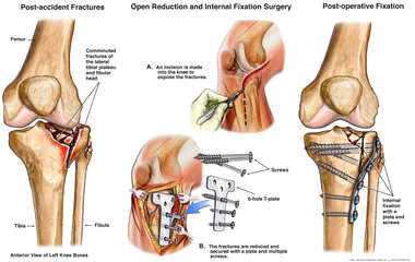 Left Knee Tibial Plateau Fractures with Surgical Fixation