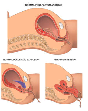 Acute Uterine Inversion