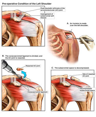 Additional Left Shoulder Problems with Open Surgical Repairs