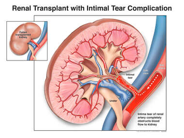 Renal Transplant with Intimal Tear Complication