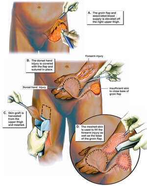 Groin Flap and Skin Graft Coverage of Hand Wounds