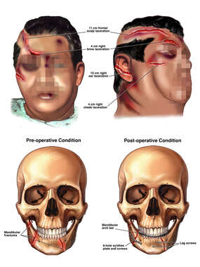 Traumatic Head Injuries with Surgical Repairs