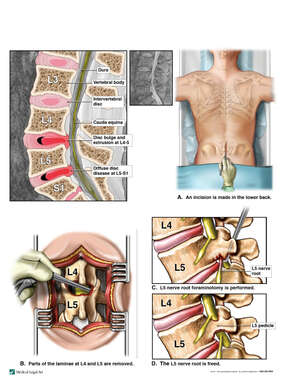 Lumbar Spine Stenosis with Surgical Decompression