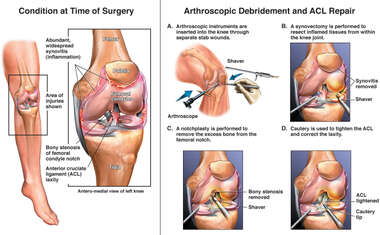 Left Knee Injuries with Arthroscopic Surgical Repairs