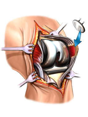 Knee Replacement Surgery with Patellar Plate