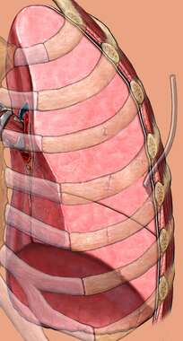 Left Lung and Thoracostomy Tube