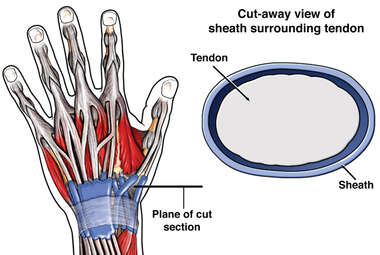 Normal Wrist Tendons and Sheaths