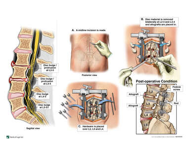 Lumbar Spine Injuries with Double Level Posterior Discectomy and Fusion Surgery