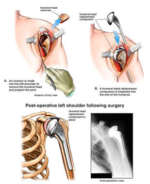 Avascular Necrosis of the Left Shoulder with Surgical Repair
