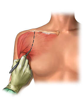Open Shoulder Surgery - Skin Incision