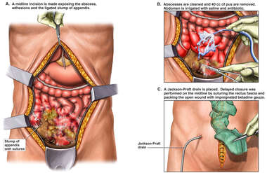 Recurrent Abcess with Open Drainage Procedure