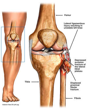 Left Knee Fractures to the Tibia, Fibular Head and Lateral Collateral Ligament